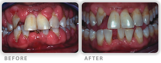 Gum disease severe periodontitis before and after treatment