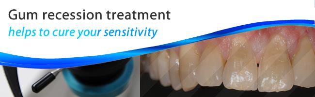 Gum recession treatment and gum contouring