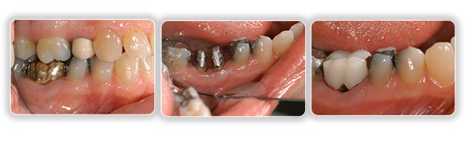 Root resection - Remove an infected root or to divide a two rooted tooth