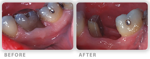 Root resection surgery before and after treatment