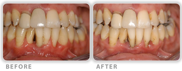 aggressive periodontitis before treatment