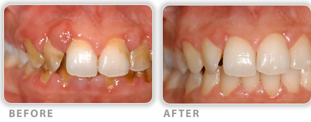 bone and soft tissue grafts for treating gum disease