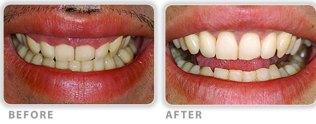 correct gummy smile surgical treatment
