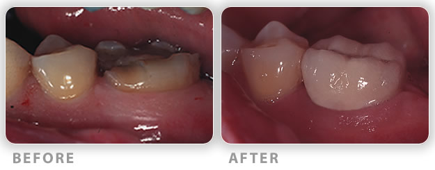 crown lengthening surgical procedure