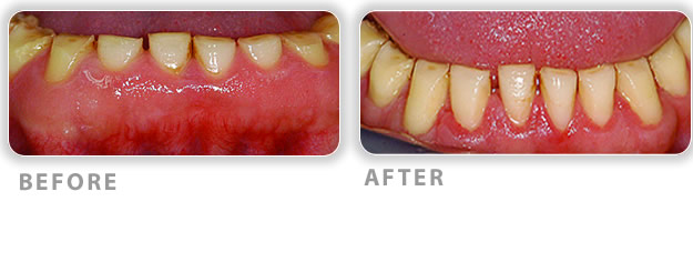 crown lengthening treatment