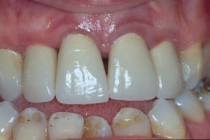 gingivitis after treatment
