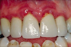 gingivitis before treatment