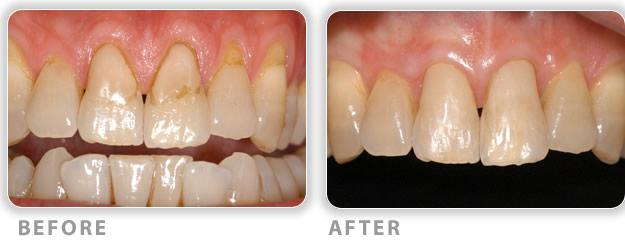 gum contouring can cure sensitivity