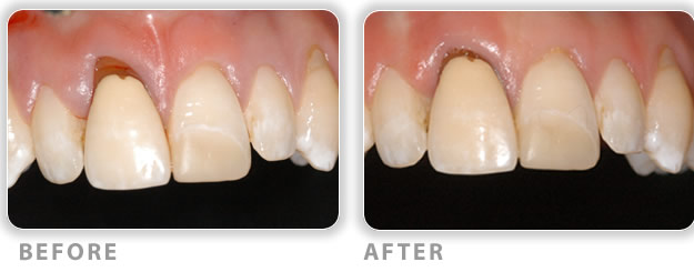 gum grafting used to treat periodontal conditions