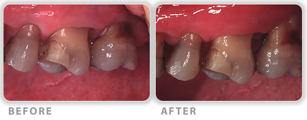 gum treatment periodontal pockets