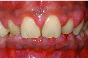 image of early periodontitis diagnosis
