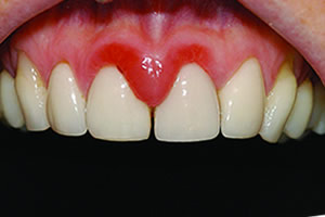 image of gingivitis diagnosis