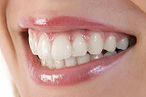 image of healthy gum diagnosis