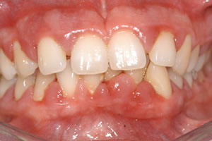 image of moderate periodontitis diagnosis