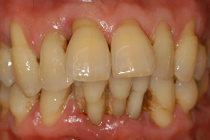image of severe periodontitis diagnosis