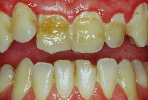images of gums disease gingivitis