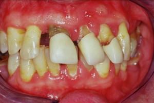 images of gums disease periodontitis