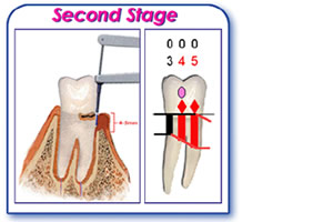 periodontal chart early periodontitis
