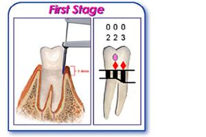 periodontal chart gingivitis