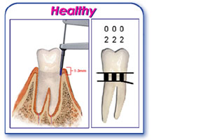 periodontal chart healthy gums