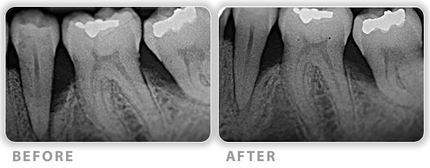 surgical periodontal regenerative therapy