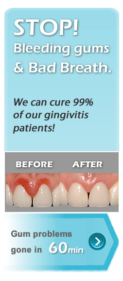 cure gingivitis bad breath banner